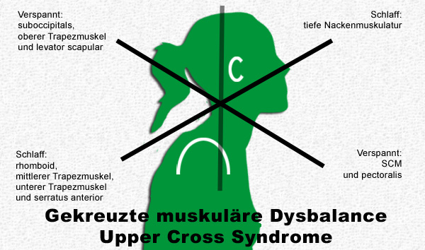 Upper Cross Syndrome