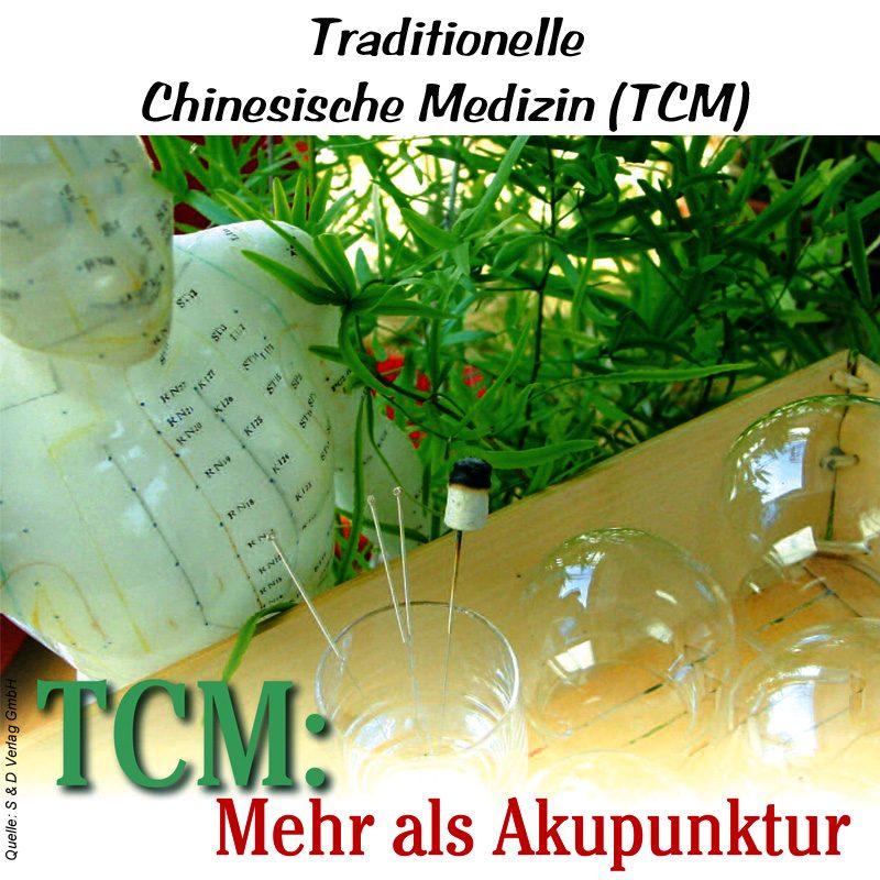 TCM NuG