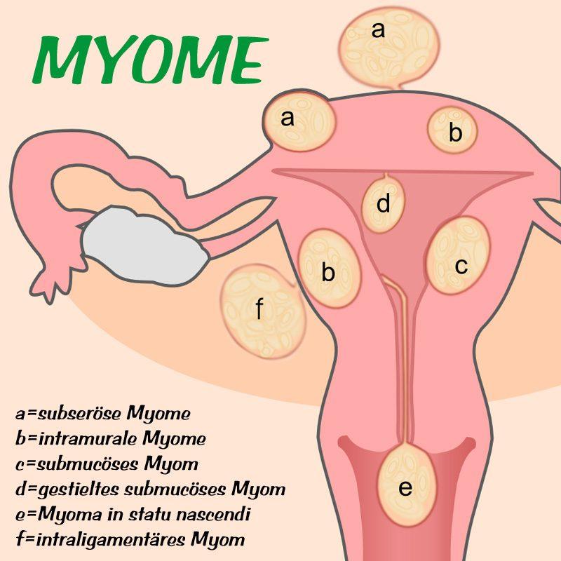 myome