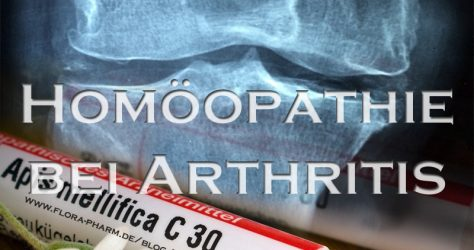 Homöopathie bei Arthritis