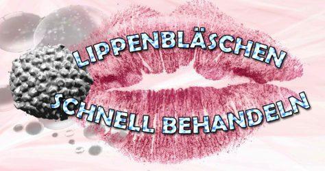 Herpes Lippenbläschen