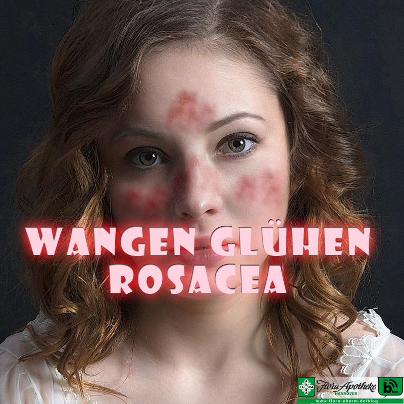 Rosacea - glühende Wangen