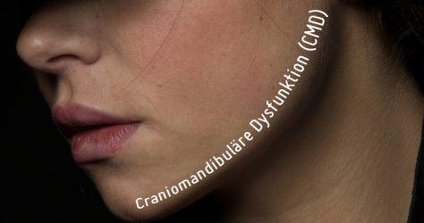 CMD (Craniomandibuläre Dysfunktion)
