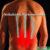 Volksleiden Rückenschmerz
